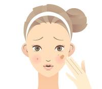 困った思春期ニキビに♪お肌をきれいにしてくれる化粧水大特集!!のサムネイル画像