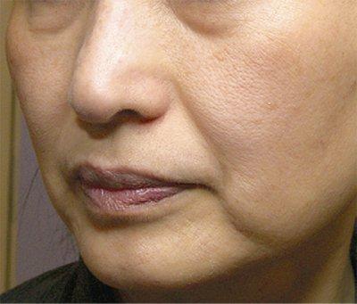 マイナス5歳!!お肌のたるみ改善に効果のあるおすすめ化粧品3選のサムネイル画像