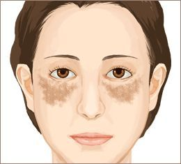 シミや肝斑に悩む人!諦めないで!【トラネキサム酸】の美白効果!のサムネイル画像